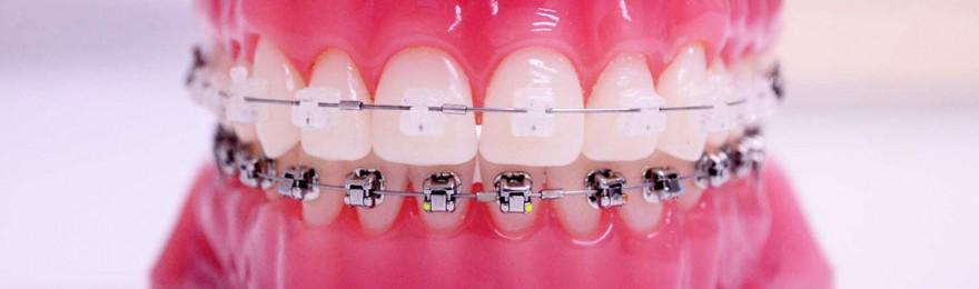 b_ortodoncia